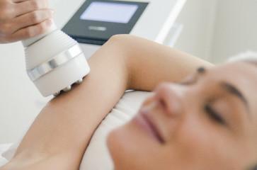 Criofrequência: tratamento para perda de gordura localizada